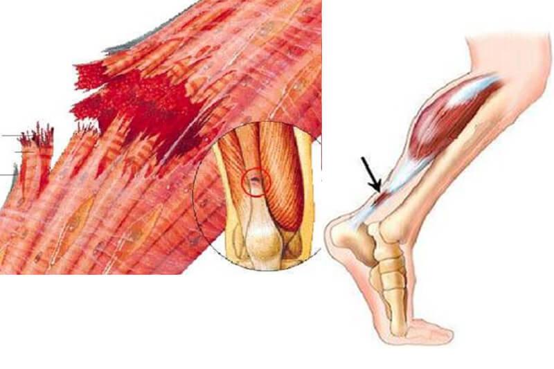 Un error mortal descubierto en Dolor de rodilla en reposo y cómo evitarlo