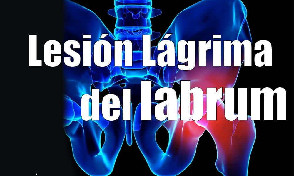 Lágrima del labrum | Lesión de cadera | Síntomas y tratamiento