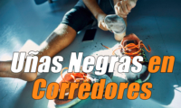 Uñas Negras en Corredores: Causas, Tratamiento y Prevención